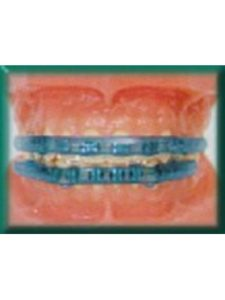 amazon lip bumper